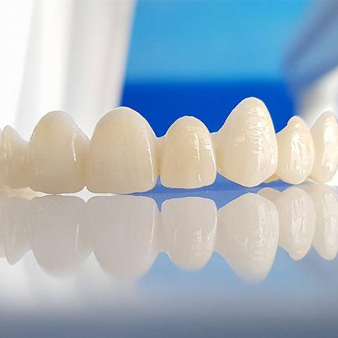Narušenu funkcionalnost ili estetiku zuba nadomjestite cirkon keramičkim krunicama i sačuvajte ljepotu i čvrstoću zuba.