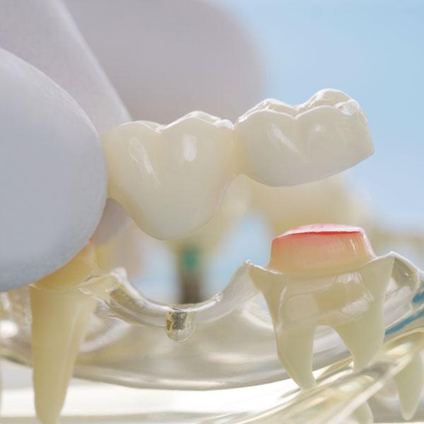 Moderne Zahnprothetik bietet mehrere Lösungen zur Kompensation der verlorenen Zähne.