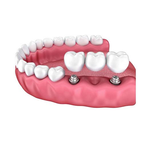 Oralna kirurgija i implantati