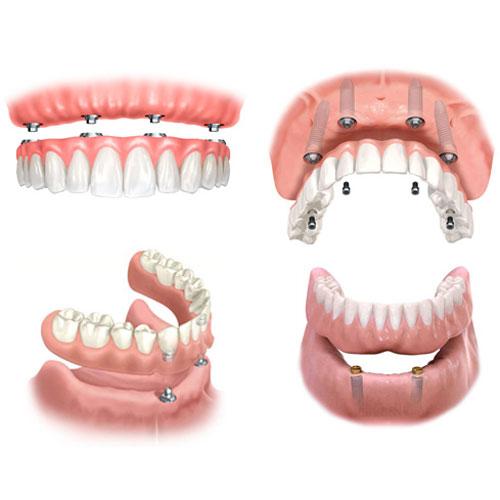 Sodobna zobna protetika nudi več rešitev za nadomeščanje izgubljenega zoba.