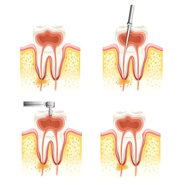Endodoncija - liječenje korijenskih kanala zuba