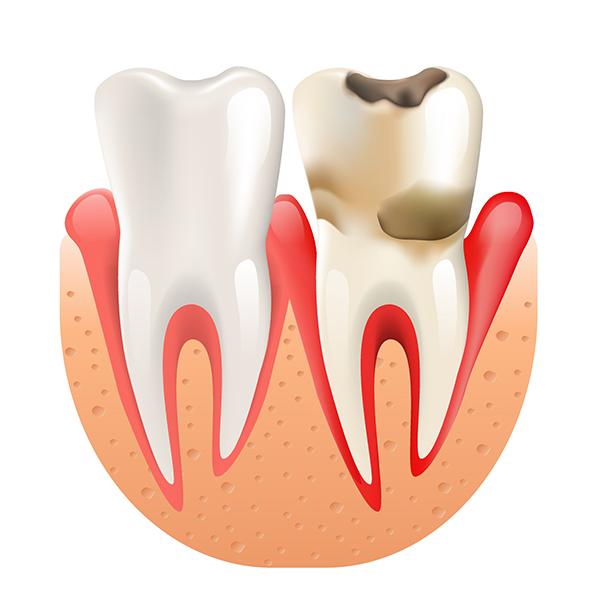 Parodontitis - Parodontologija
