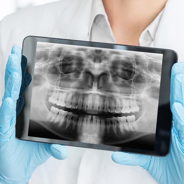 Digitalni zubni rentgen i ortopan